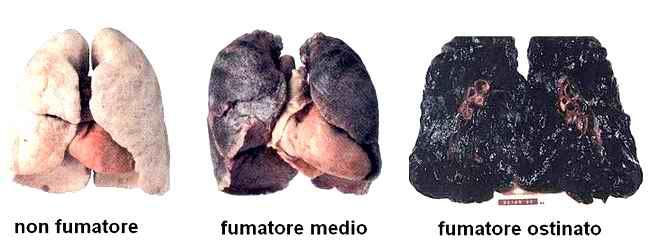 Statistica di malattie da dipendenza di nicotina