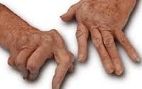 Artrite reumatoide: una patologia invalidante