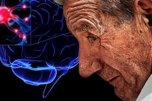 Morbo di Parkinson
