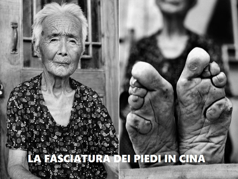 fasciatura dei piedi