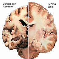 cervello alzheimer