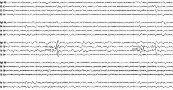 epilessia temporale